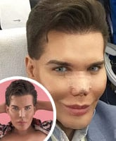 Human_Ken_Doll_Rodrigo_Alves_nose_tn