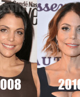 Bethenny Frankel Before and After Plastic Surgery