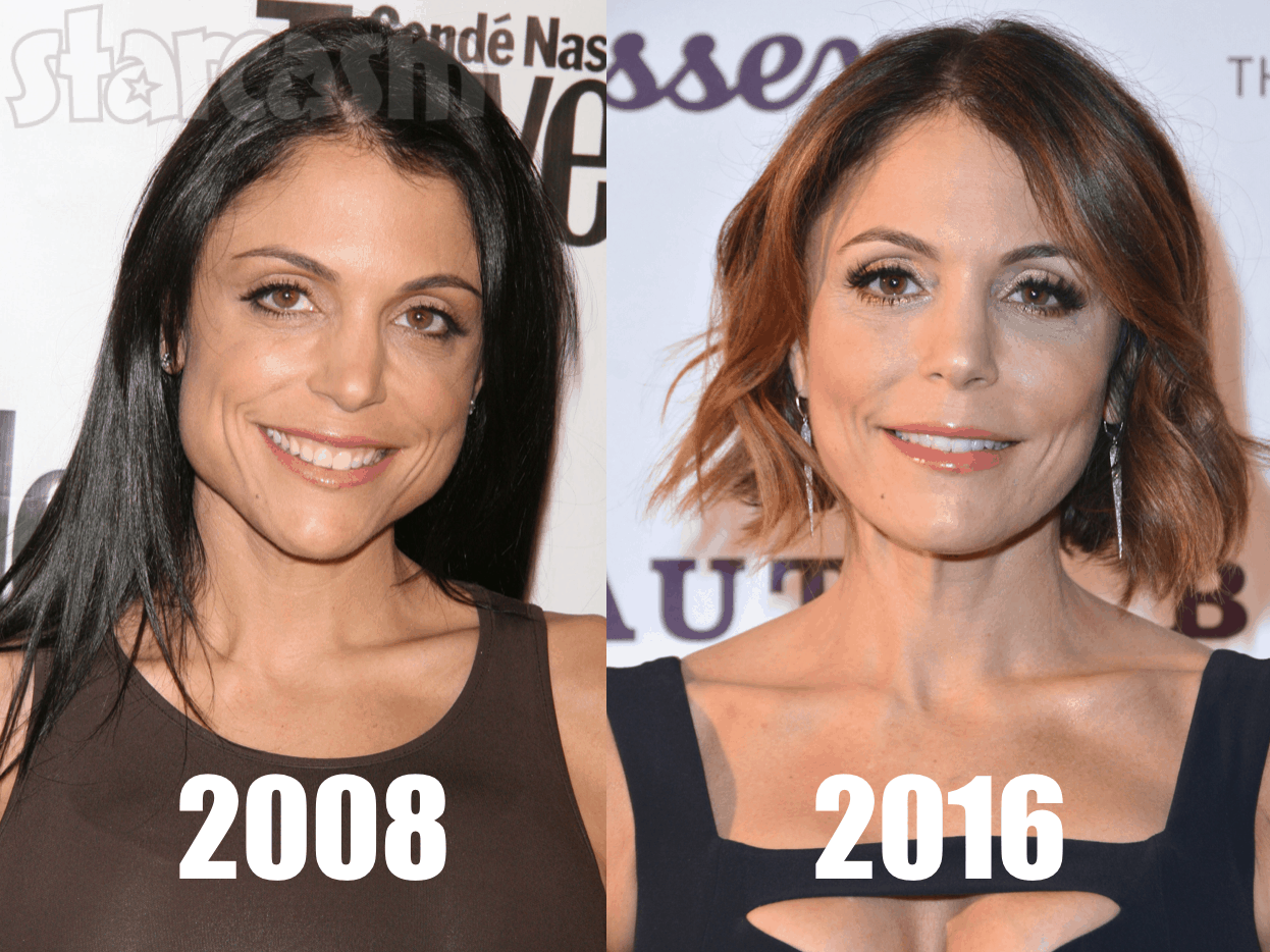 Did Bethenny Frankel Have Plastic Surgery