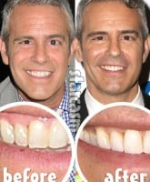 Andy Cohen skin cancer before and after mole removal photos