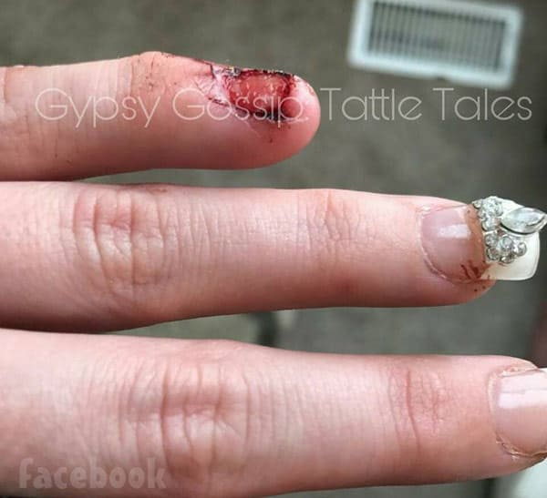 Gypsy Sisters brawl Dallas Malone fingernail injury