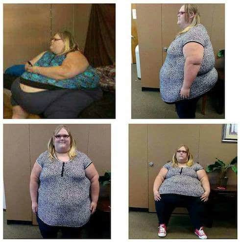 My 600 Lb Life Nicole Lewis before-and-after photos 1