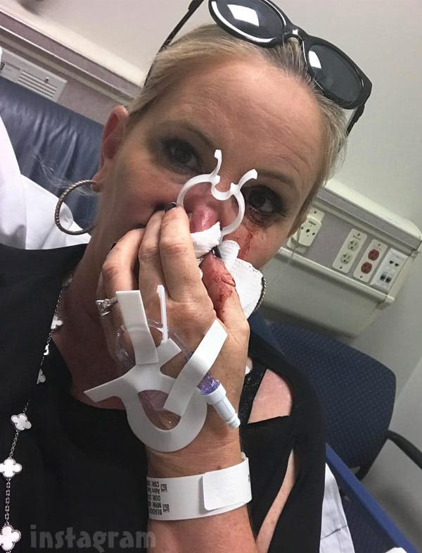 Shannon Beador hospital