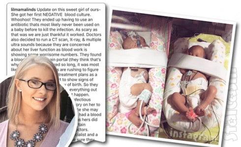 Lindsey Nicholson twins health update