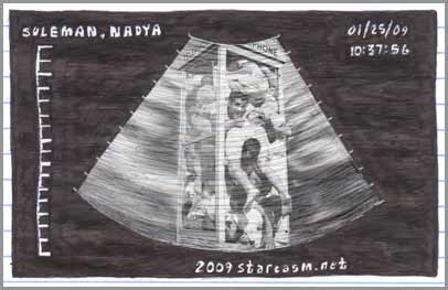 Exclusive Nadya Suleman sonogram featuring her octuplets