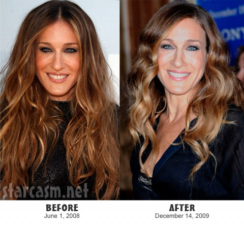Before and After photos of Sarah Jessica Parker's mole removal