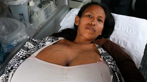 Size N cup boobs keep Peruvian woman traped in her bed