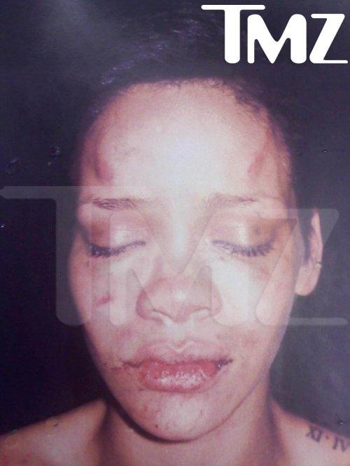 Rihanna Chris Brown's abuse photo
