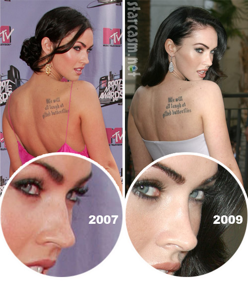 Megan Fox nose job before and after photo