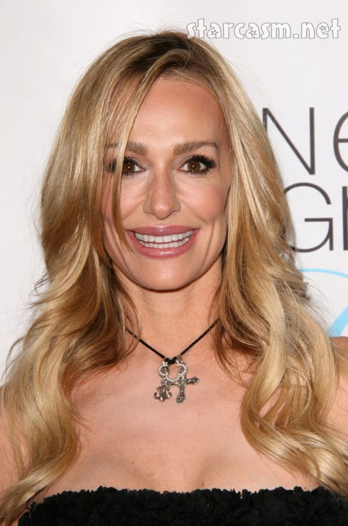Taylor Armstrong plastic surgery, lip injections?