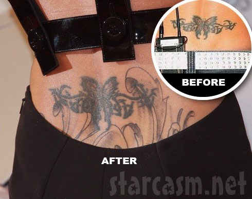 Cheryl Cole back butterfly tattoo before and after