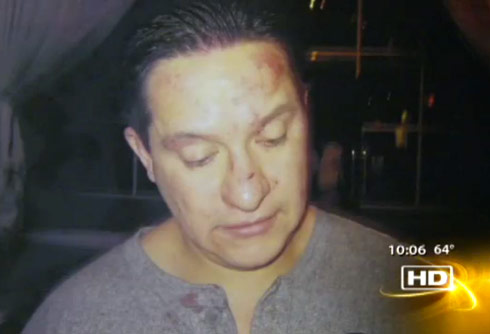 Adolfo Arreola's wounds after allegedly being beat up by cast of Real Housewives of New Jersey