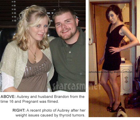 16 and Pregnant's Aubrey Wolters Akerill's weight loss allegedly due to thyroid tumors