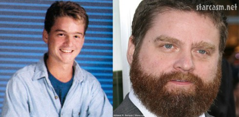 Zach galifanakis high school photo compared to now