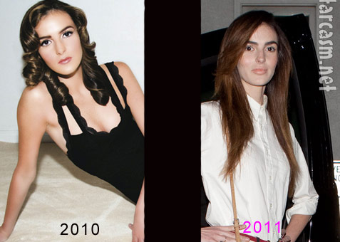 Ali Lohan plastic surgery before anda fter too thin