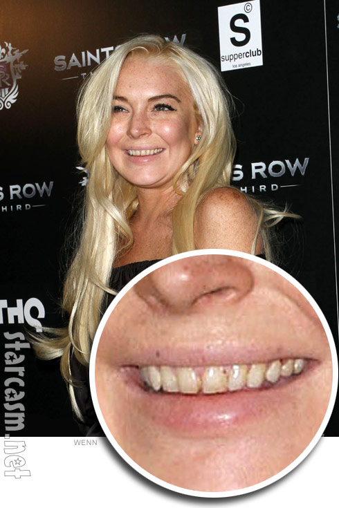 Lindsay Lohan appears to have rotten teeth from drug use at Saint's Row The Third event