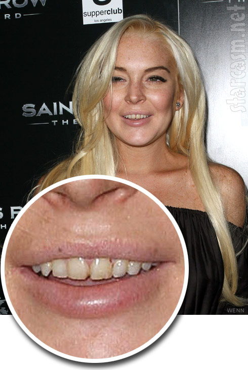 Close-up photo of Lindsay Lohan's bad teeth at Saint's Row: The Third event