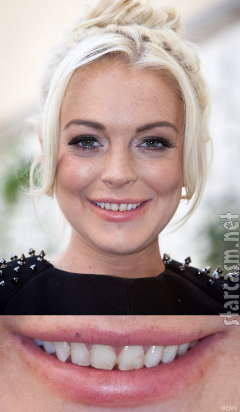 Lindsay Lohan's teeth at Philipp Plein event September 24 2011
