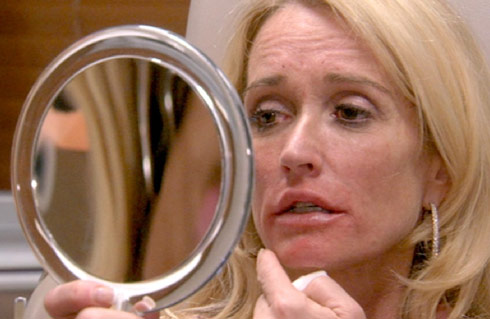 RHOBH Kim Richards lip injection