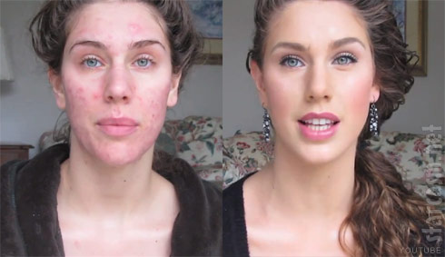 How to cover acne with makeup before and after photos by Cassandra Bankson