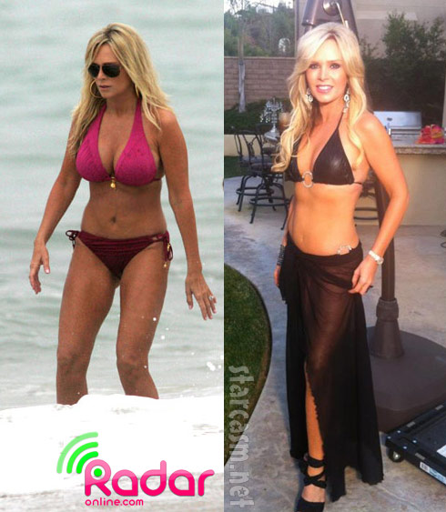 Tamra Barney before and after having her breast implants removed