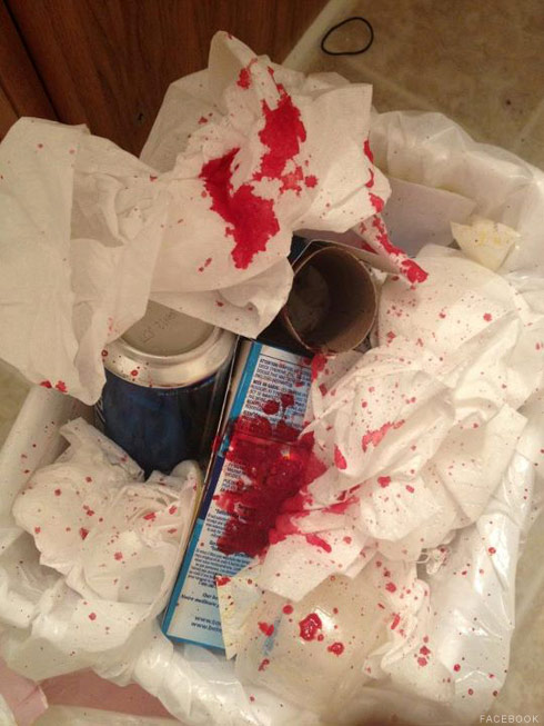 Jenelle Evans photo showing blood she coughed up after tonsil surgery