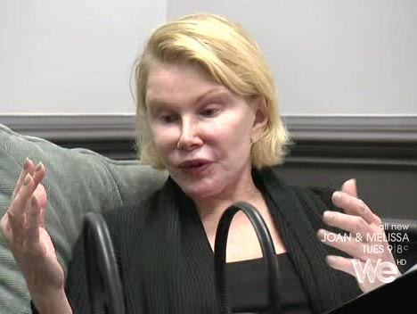 Joan Rivers plastic surgery photo with no makeup
