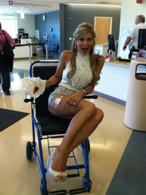 Alexis Bellino injured at husband Jim Bellino's 50th birthday party