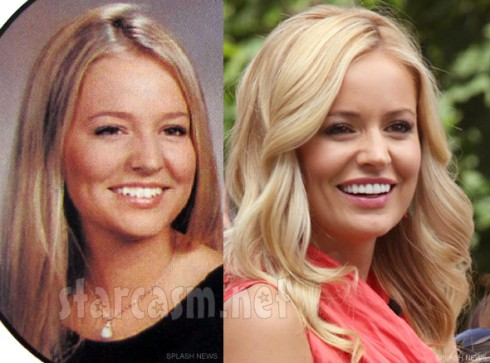 Emily Maynard plastic surgery before and after photos nose job