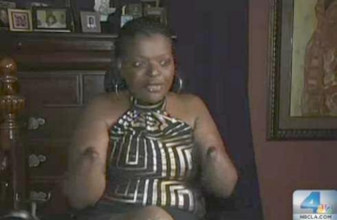 Pumping Party Woman April Brown Lost All Four Limbs And
