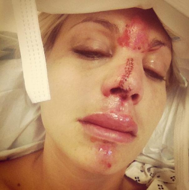 Lisa D'Amato facial surgery