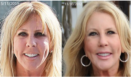 vicki gunvalson before and after