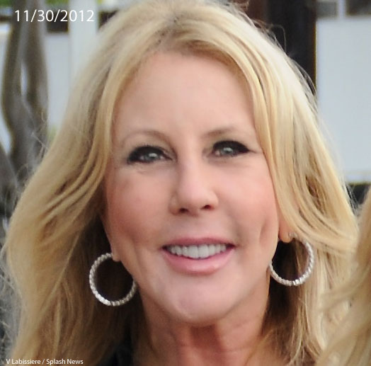 Vicki Gunvalson Nose Job Chin Implant Before Amp After