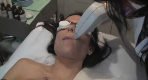 Bethenny laser hair removal 2