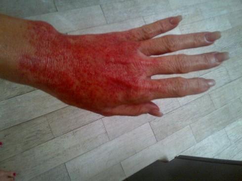 Brandi Glanville's burned hand