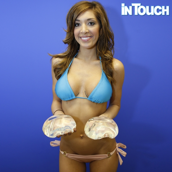 Second breast augmentation
