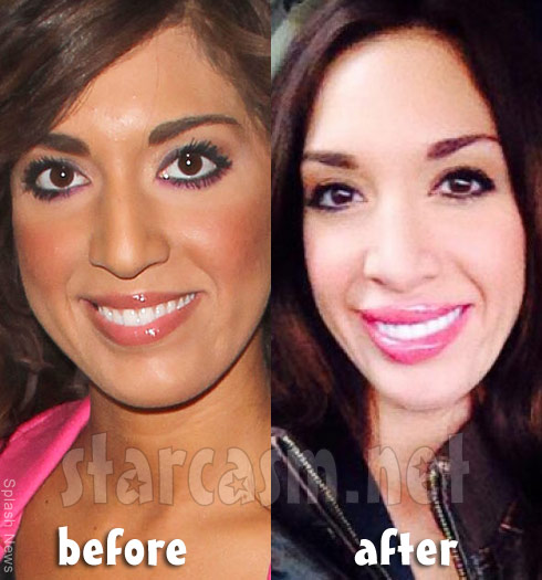 Farrah Abraham before and after lip injections photos