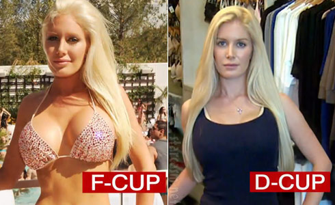 Heidi Montag before and after implant removal surgery