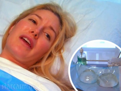 Heidi Montag's F cups removed