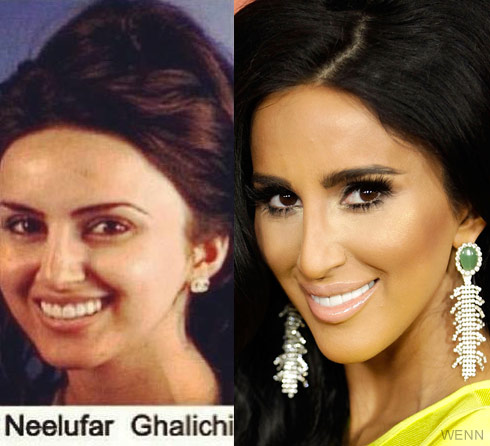 Lilly Ghalichi before and after plastic surgery nose job