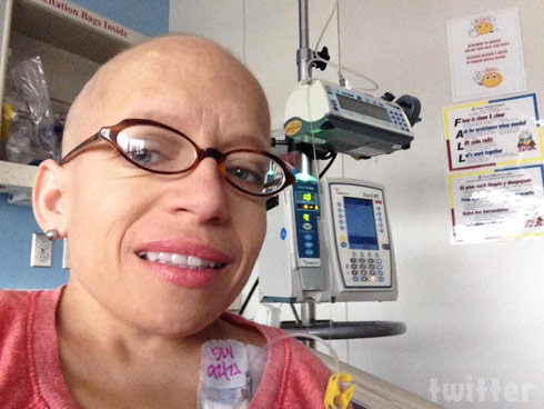 Little Couple Jen Arnold no hair from chemo cancer treatment