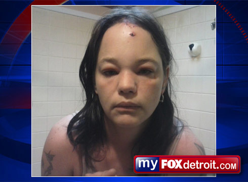 Melvin Michigan Snow cat attack victim injuries photo