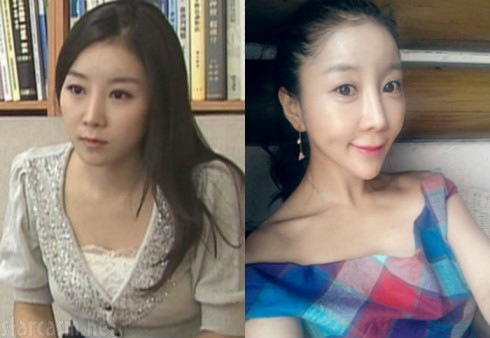 Before and After South Korean Plastic Surgery