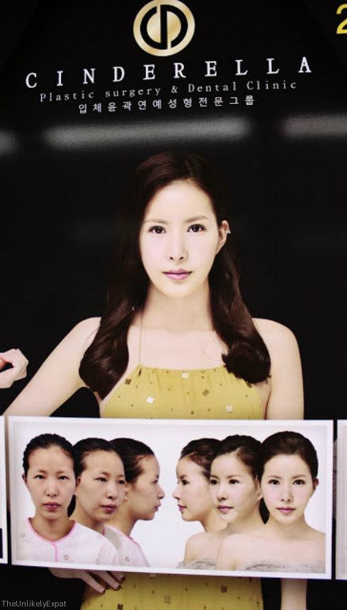 Cinderella Plastic Surgery South Korea