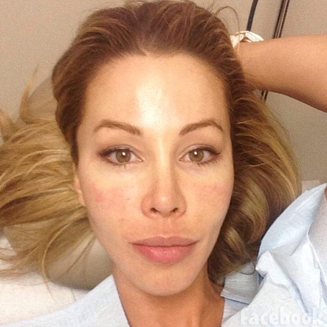 PHOTOS Lisa Hochstein gets a 'vampire facial' from her husband