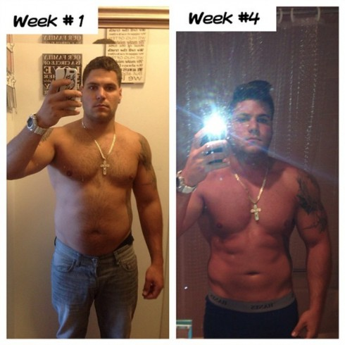 Jersey Shore Ronnie Magro Before and After