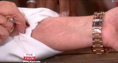Sharon Osbourne The Talk Secrets Arm Scars