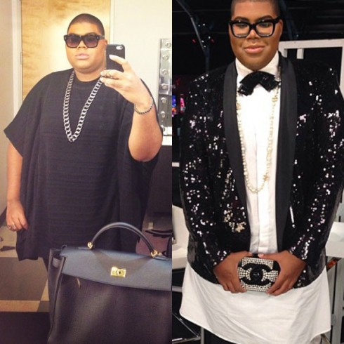 Before and After EJ Johnson Gastric Sleeve Surgery Weight Loss
