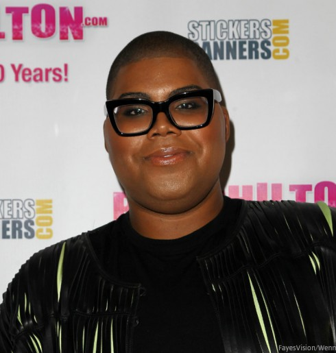 EJ Johnson After Weight Loss Surgery
