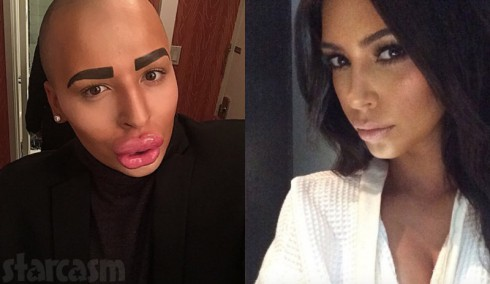 Jordan Parke plastic surgery to look like Kim Kardashian